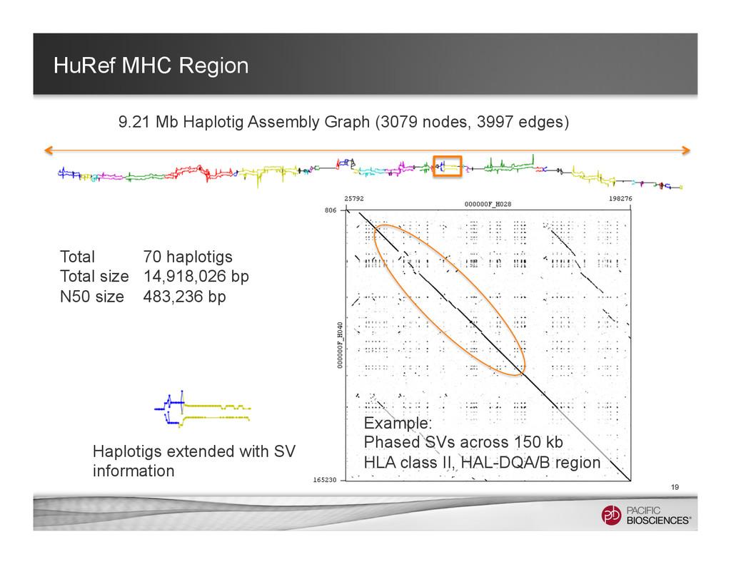 HuRef MHC Region 19 9.21 Mb Haplotig Assembly G...