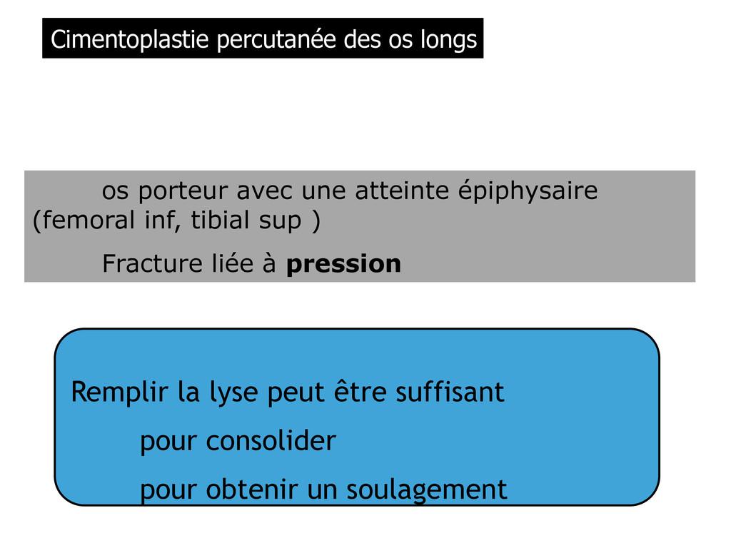 os porteur avec une atteinte épiphysaire (femor...