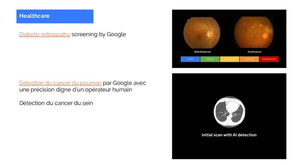 Healthcare Diabetic retinopathy screening by Go...