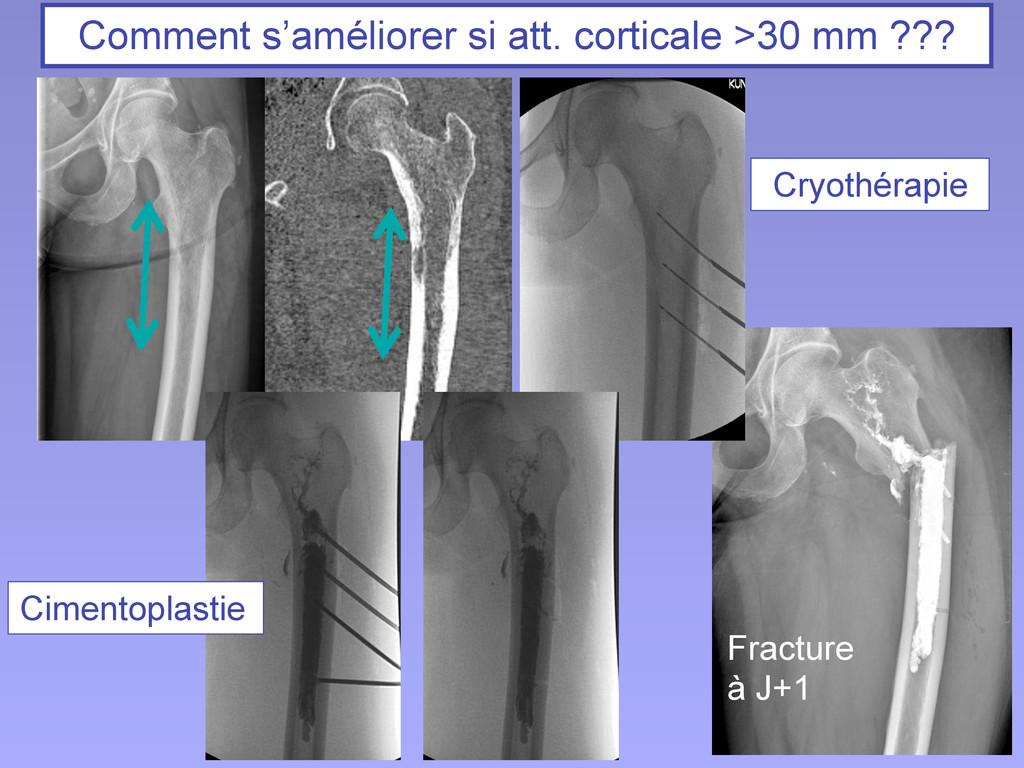 Cimentoplastie Cryothérapie Fracture à J+1 Comm...