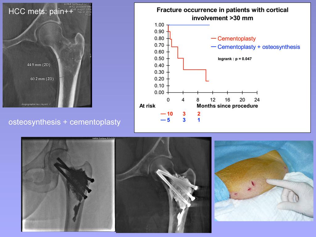 osteosynthesis + cementoplasty HCC mets: pain++