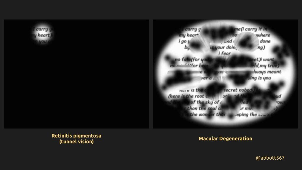 @abbott567 Retinitis pigmentosa (tunnel vision)...