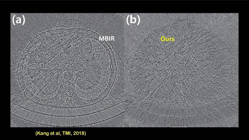 MBIR  C  D Ours MBIR (Kang et al, TMI, 2018)