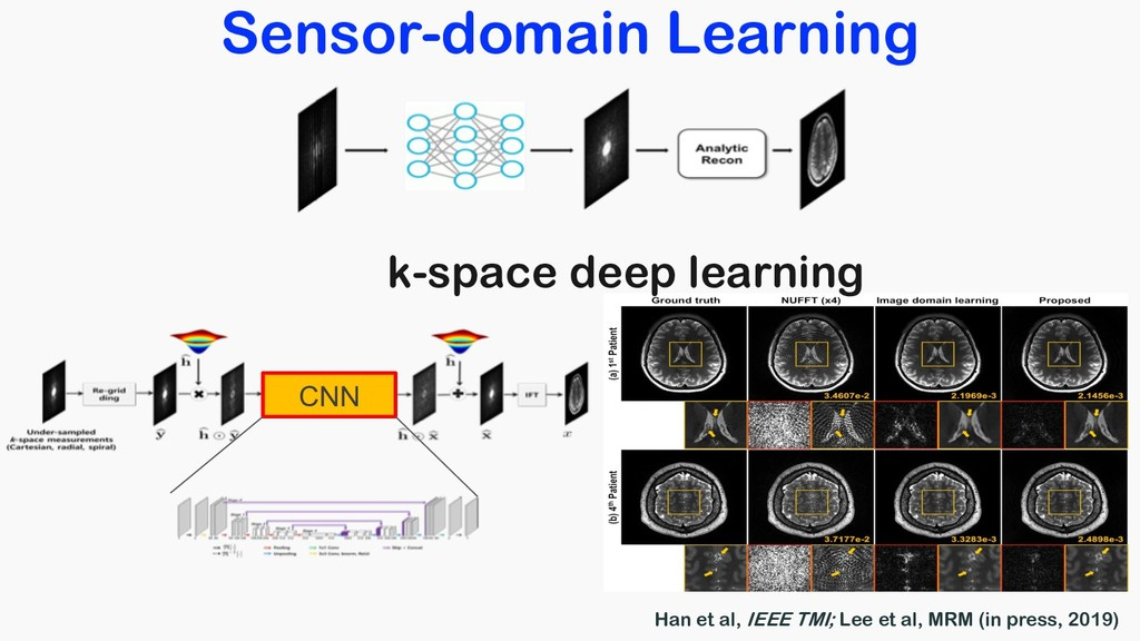 Sensor-domain Learning CNN k-space deep learnin...