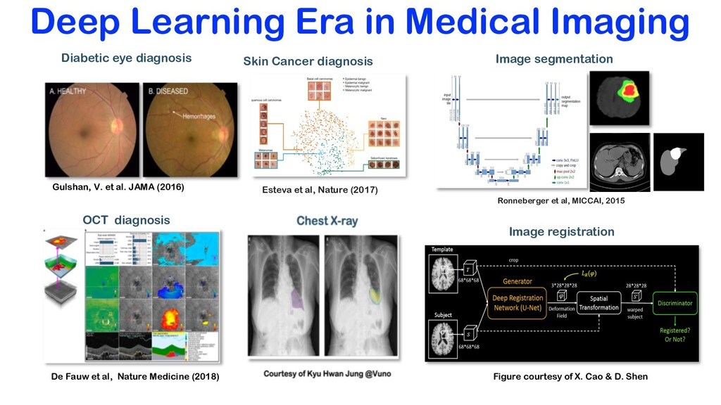 Deep Learning Era in Medical Imaging Diabetic e...