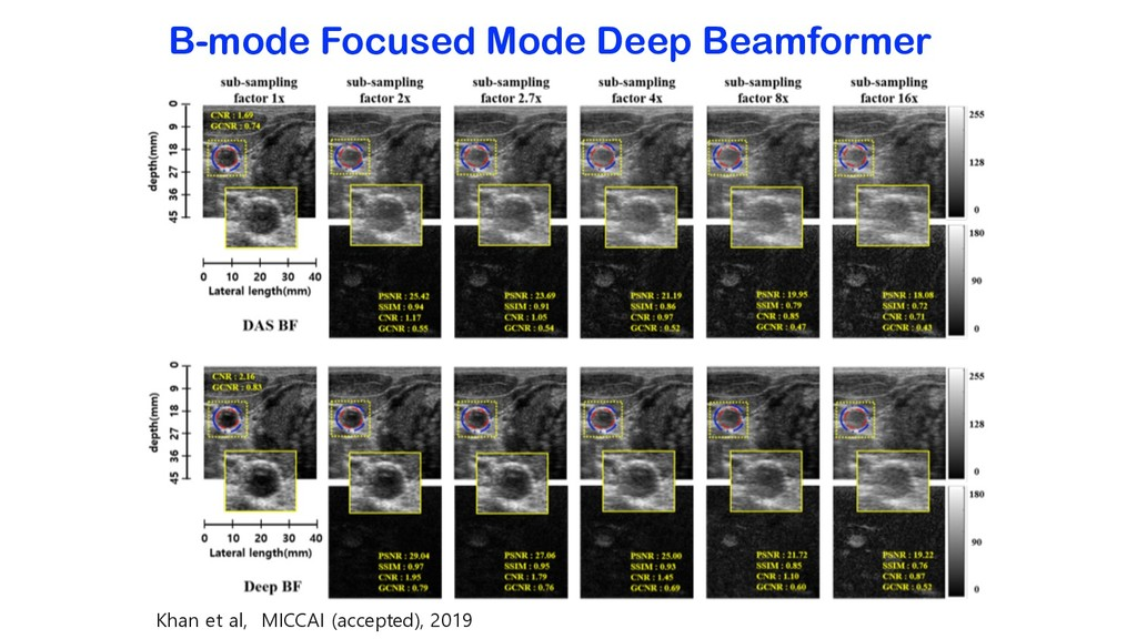 B-mode Focused Mode Deep Beamformer Khan et al,...