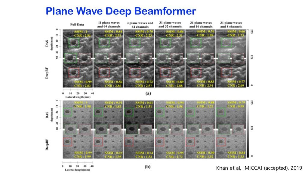 Plane Wave Deep Beamformer Khan et al, MICCAI (...