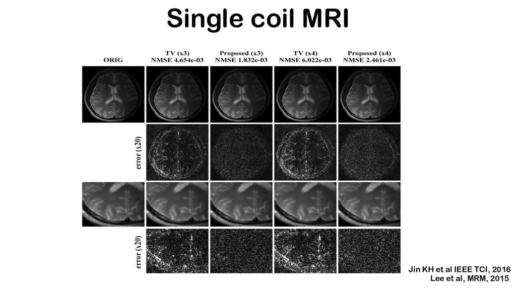 Single coil MRI Jin KH et al IEEE TCI, 2016 Lee...
