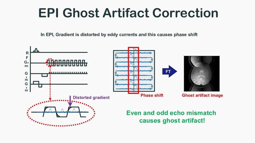 EPI Ghost Artifact Correction Gx RO G y PE G z ...