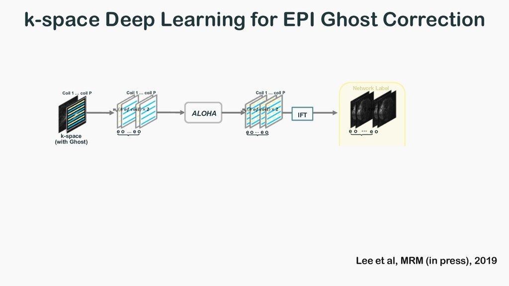 k-space Deep Learning for EPI Ghost Correction ...