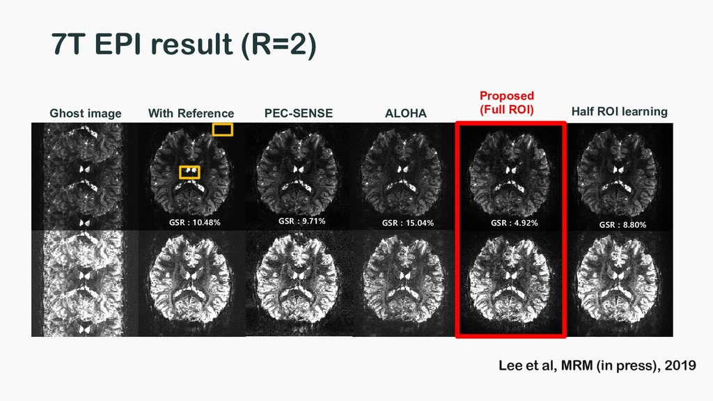 7T EPI result (R=2) ALOHA Ghost image Half ROI ...
