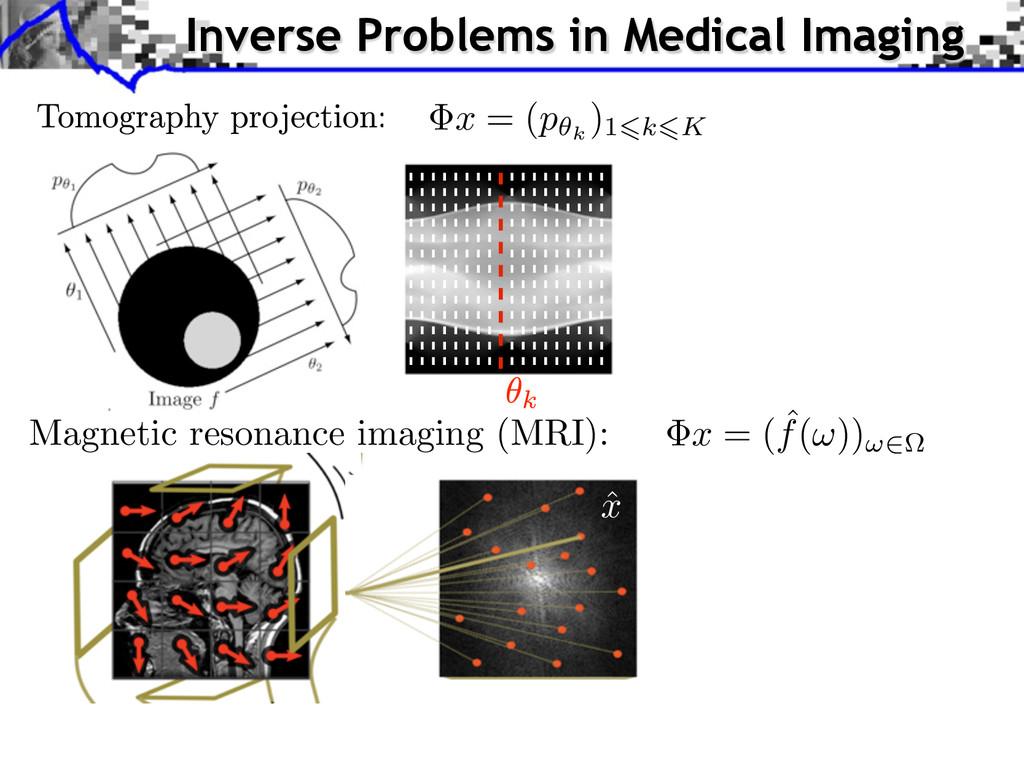 Magnetic resonance imaging (MRI): x = ( p✓k )16...