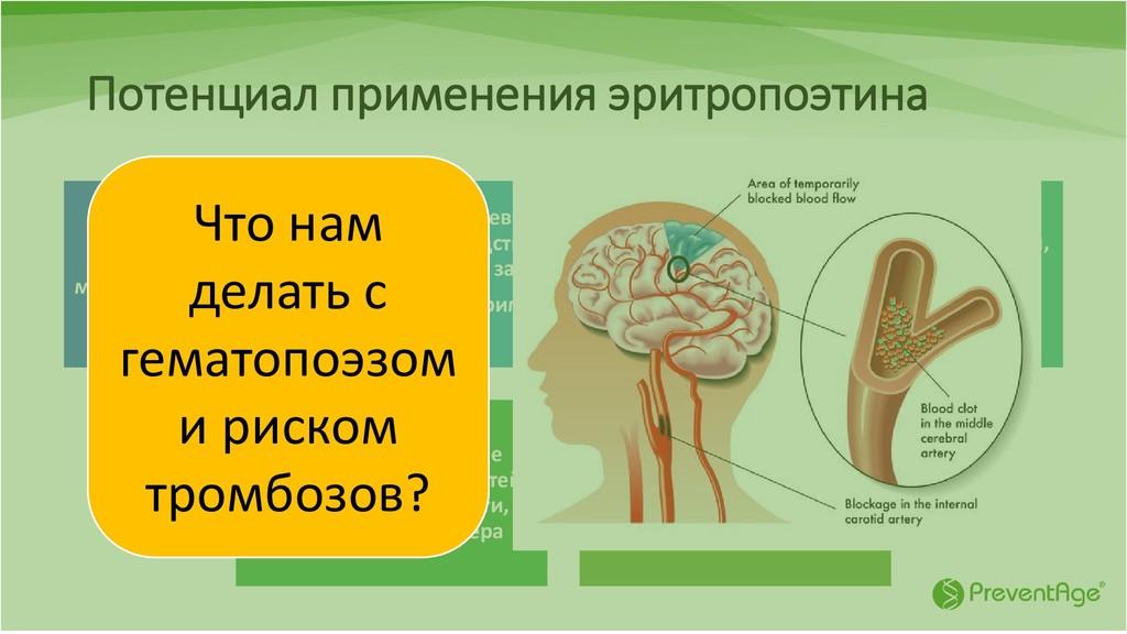 Потенциал применения эритропоэтина Инсульт и лю...