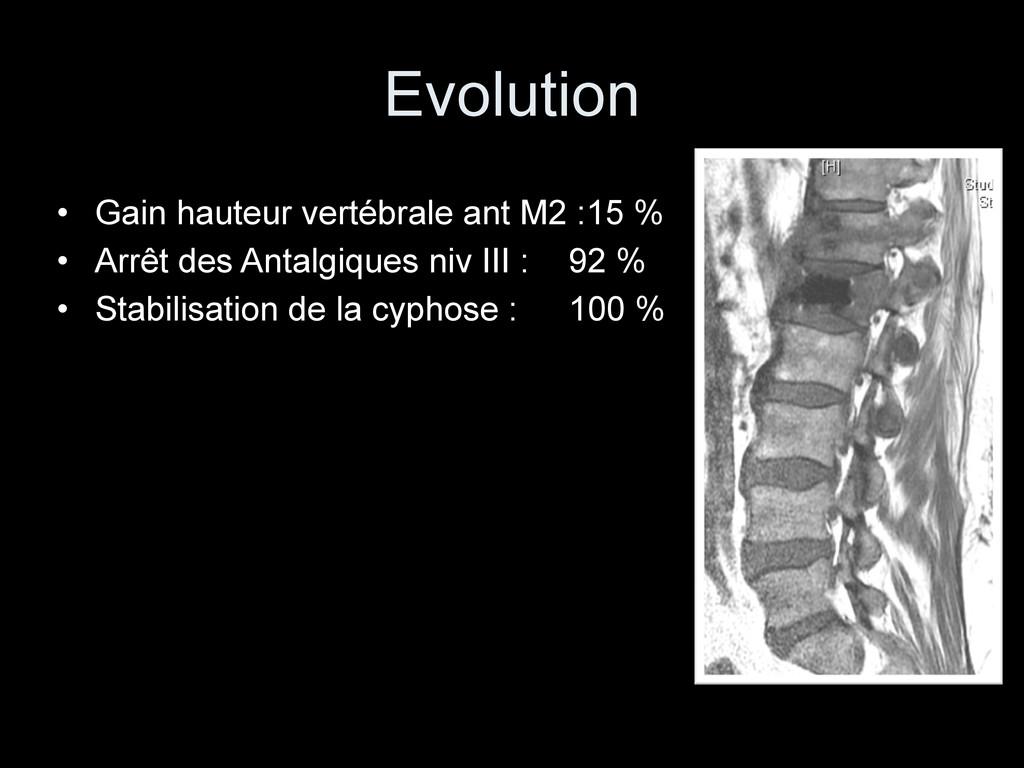 Evolution • Gain hauteur vertébrale ant M2 :15 ...