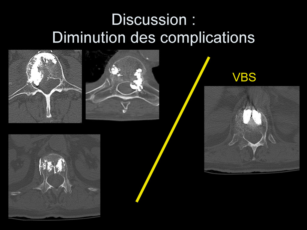 Discussion : 