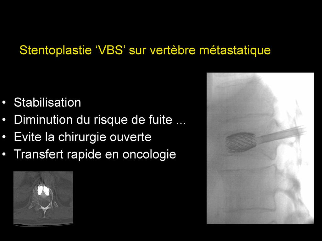 Stentoplastie 'VBS' sur vertèbre métastatique ...