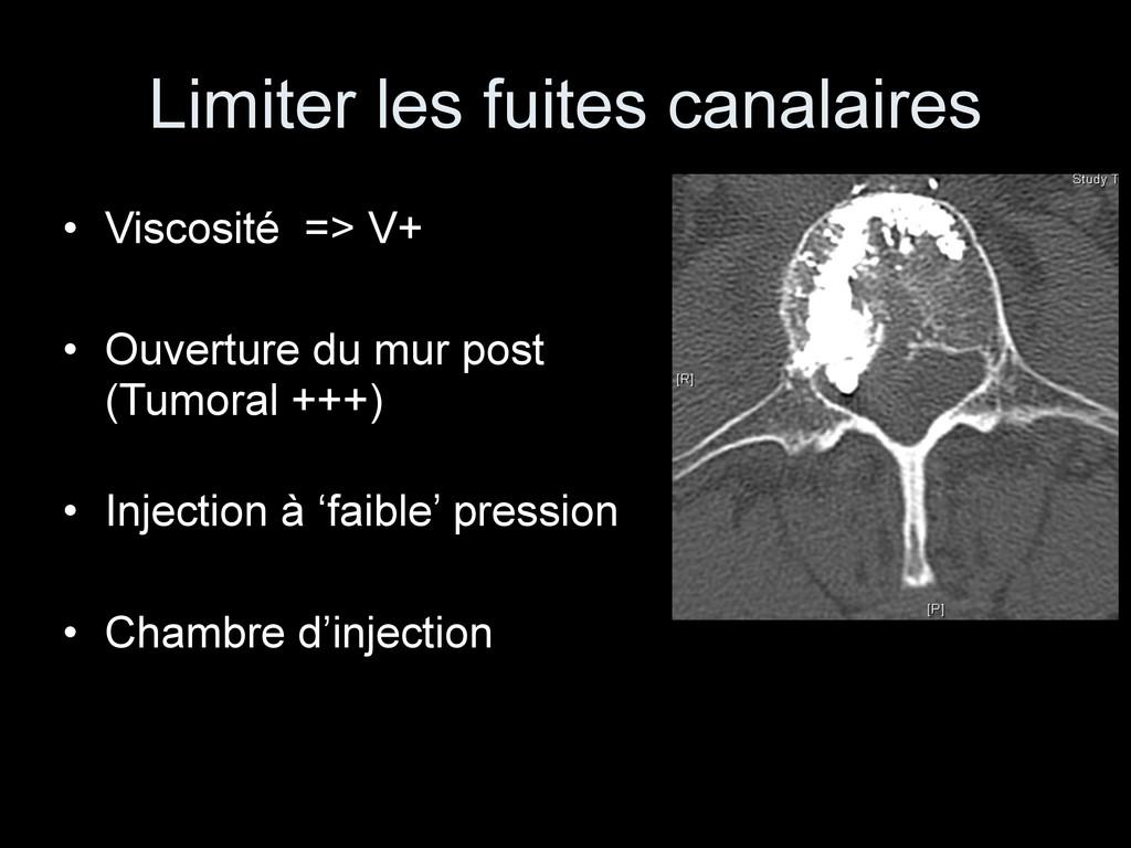 Limiter les fuites canalaires • Viscosité => V+...