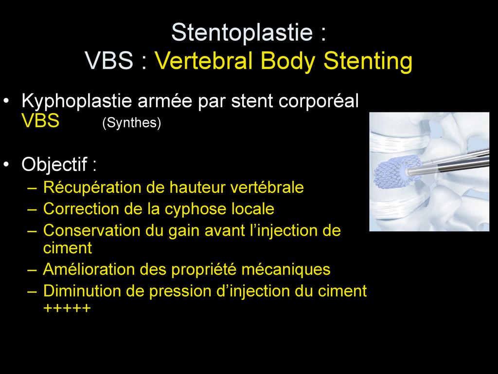 Stentoplastie : VBS : Vertebral Body Stenting ...