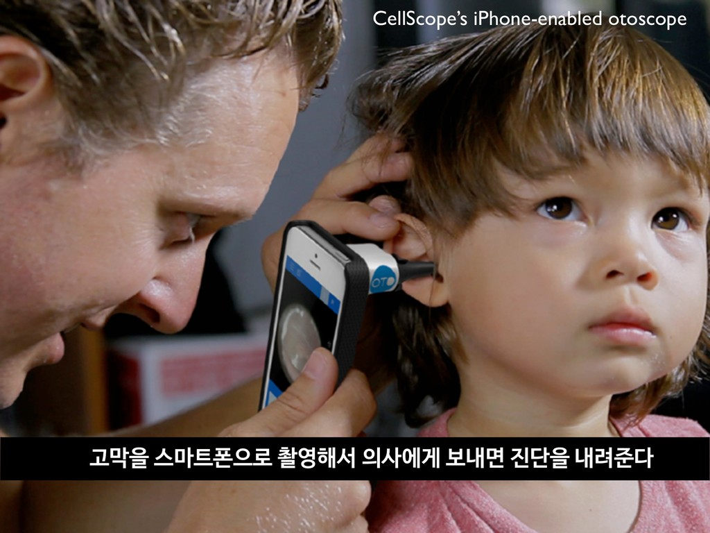 CellScope's iPhone-enabled otoscope 고막을 스마트폰으로 ...