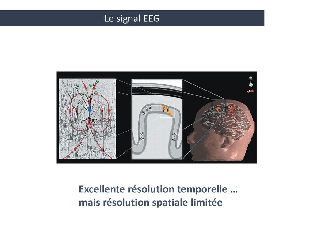 Le signal EEG Excellente résolution temporelle ...