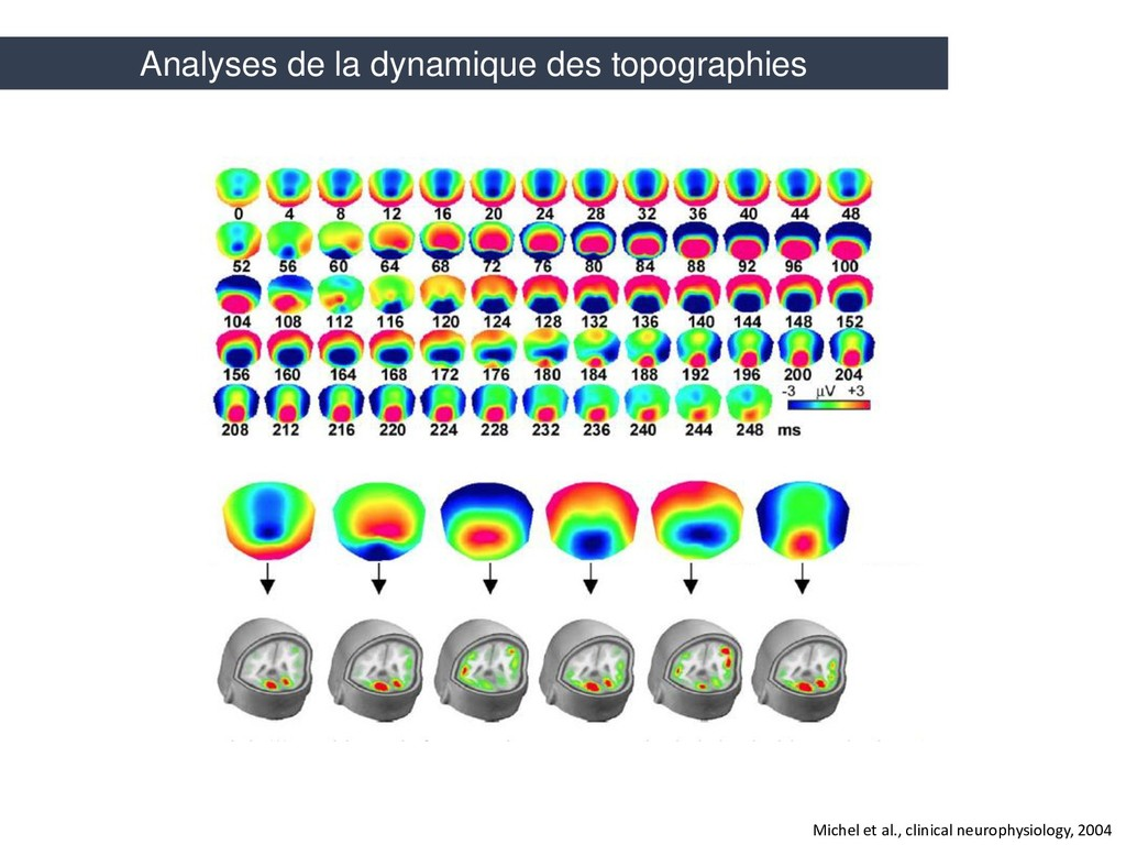 Michel et al., clinical neurophysiology, 2004 A...