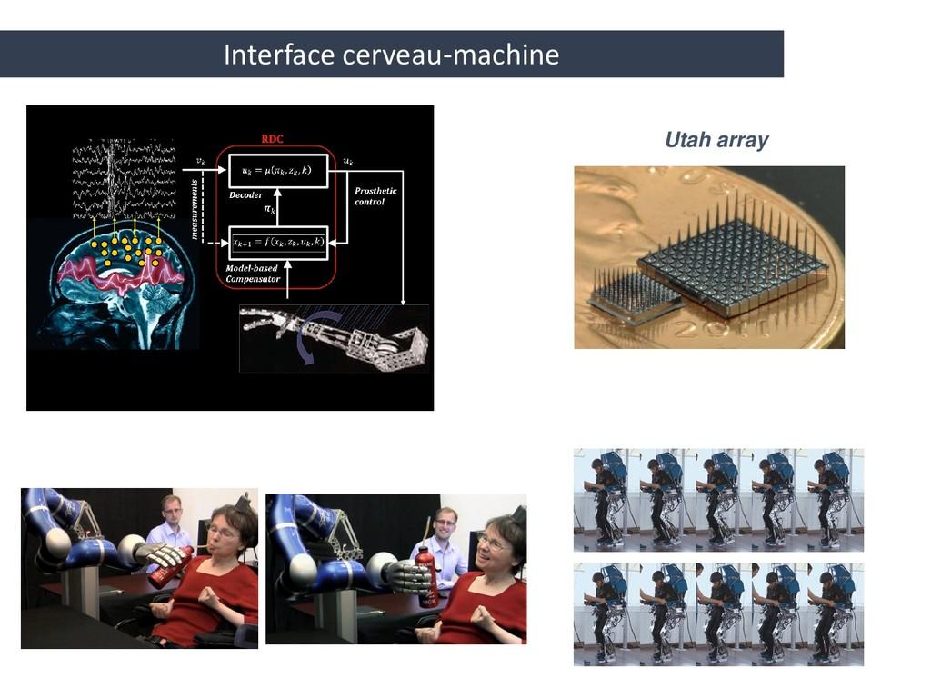 Utah array Interface cerveau-machine