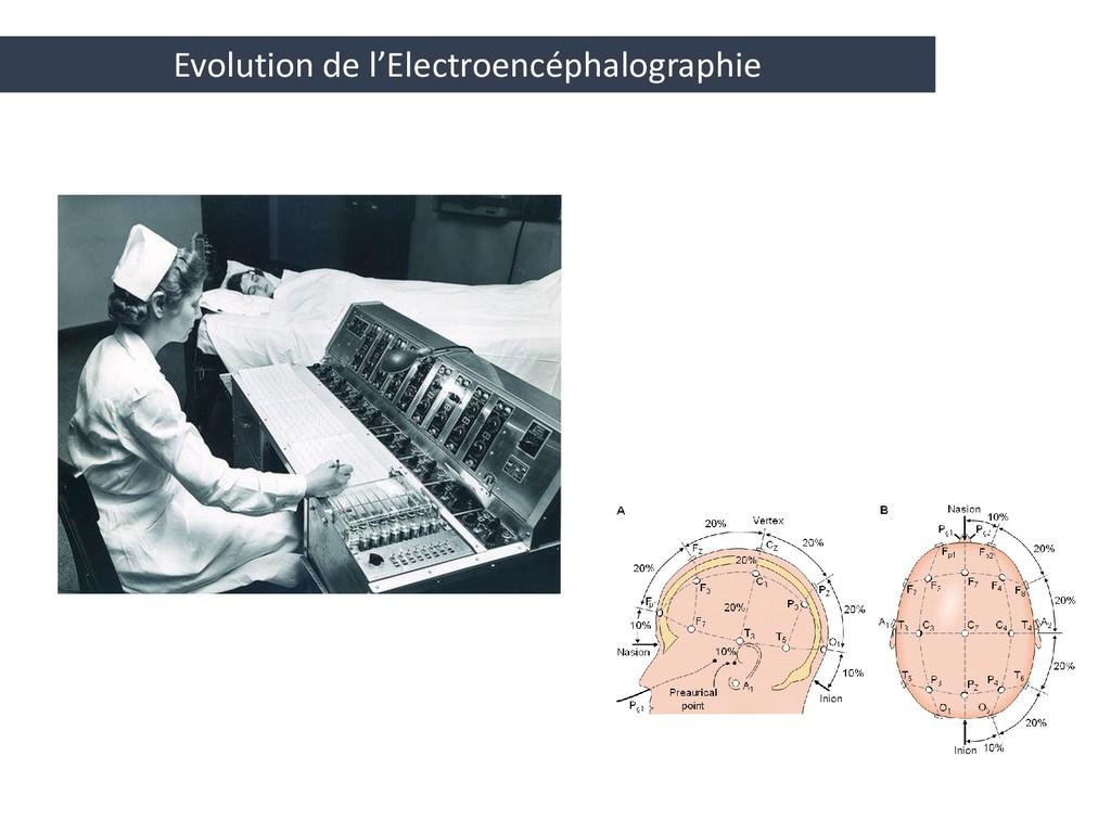 Evolution de l'Electroencéphalographie