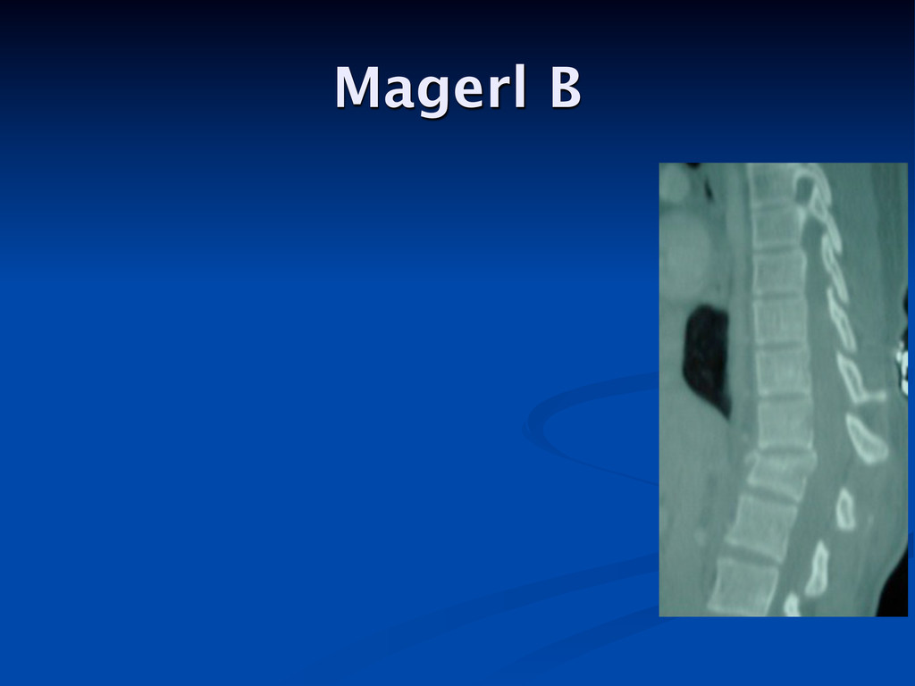 Magerl B