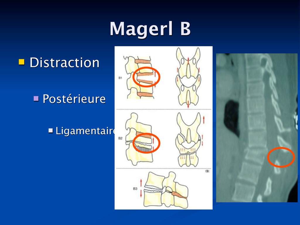 Magerl B  Distraction  Postérieure  Ligament...