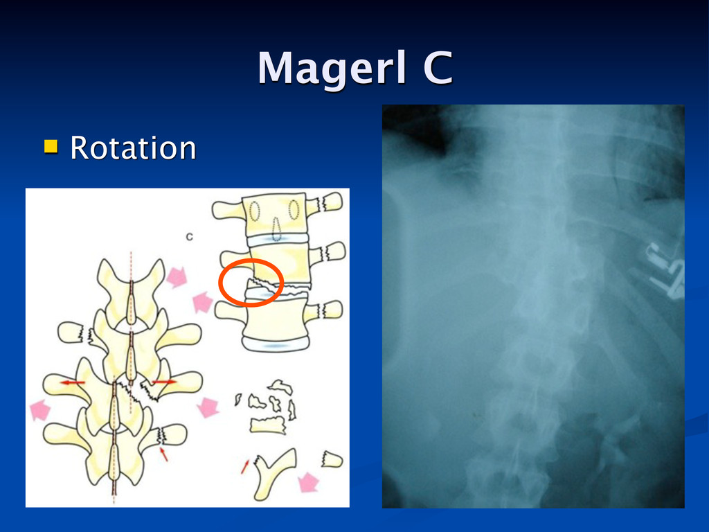 Magerl C  Rotation
