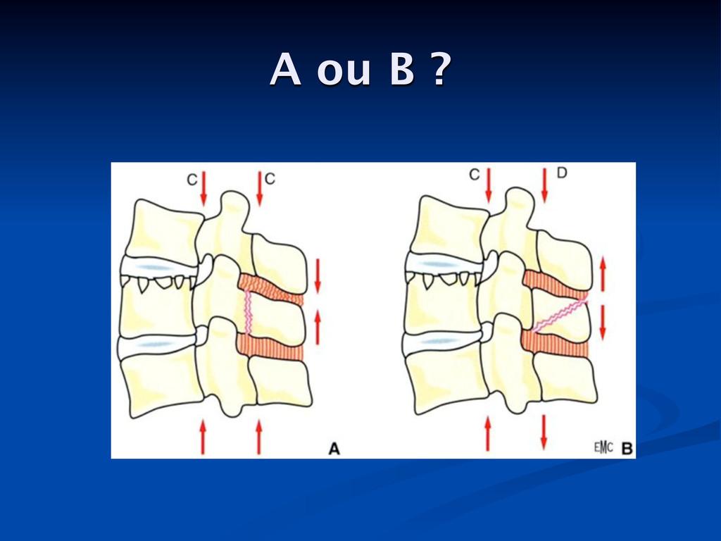 A ou B ?