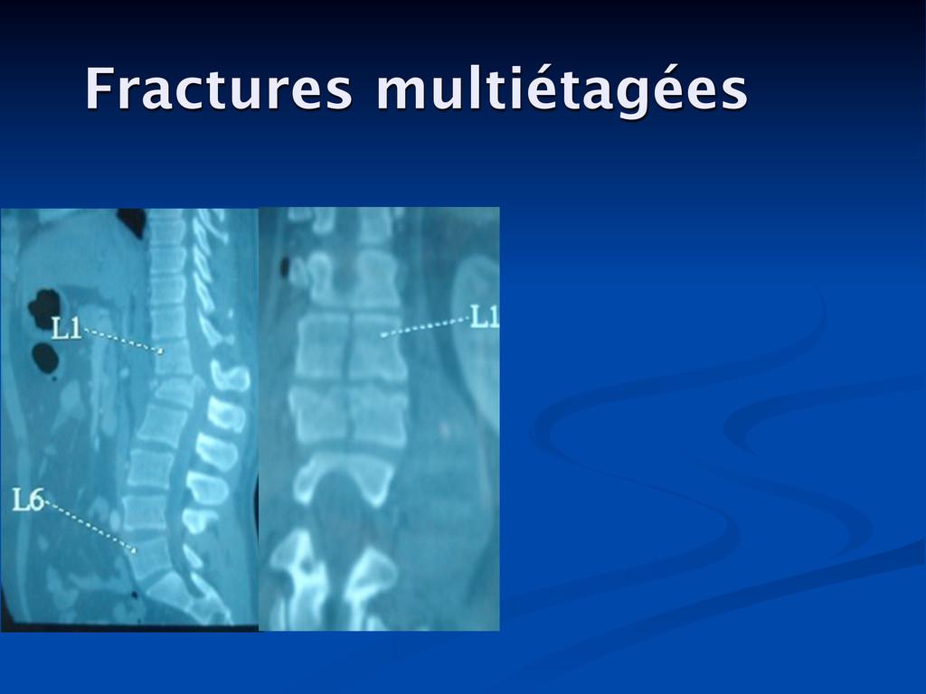 Fractures multiétagées