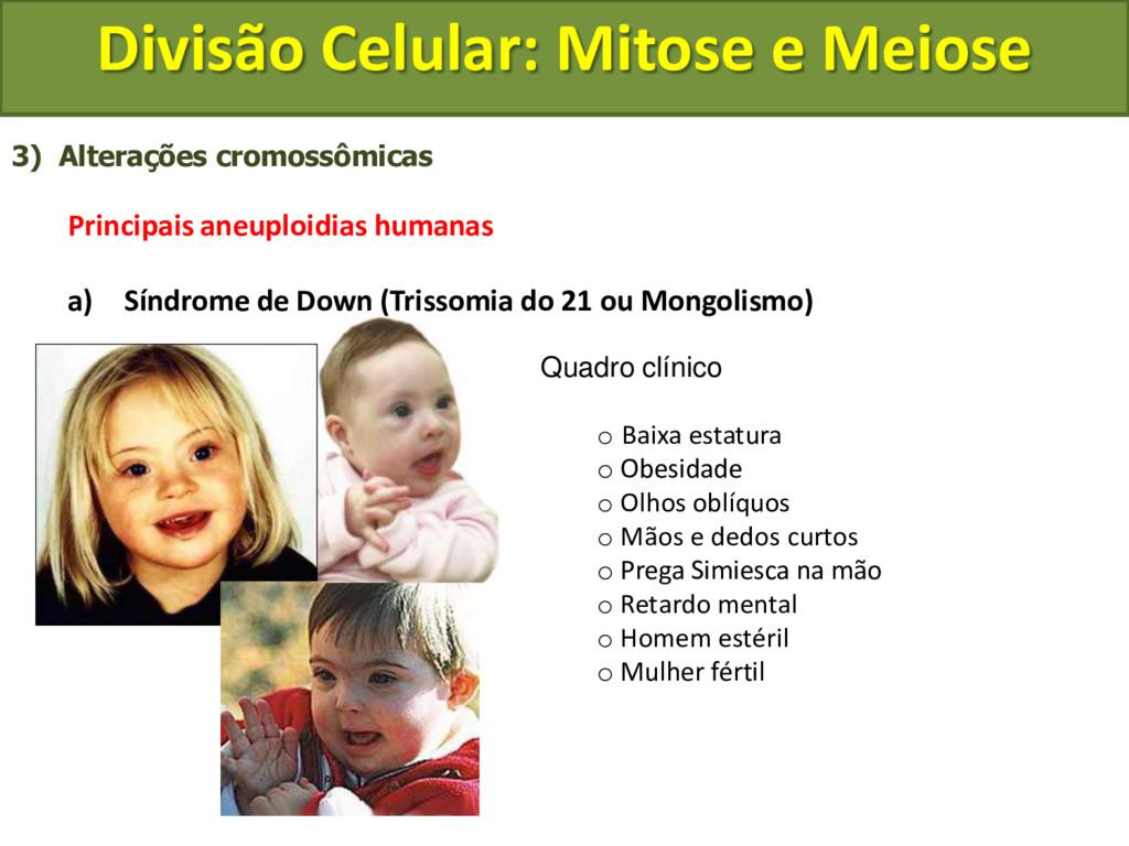 3) Alterações cromossômicas Principais aneuploi...