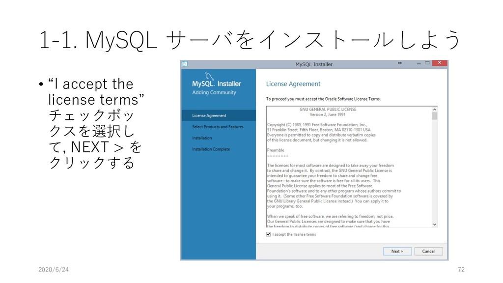 "1-1. MySQL サーバをインストールしよう • ""I accept the licens..."