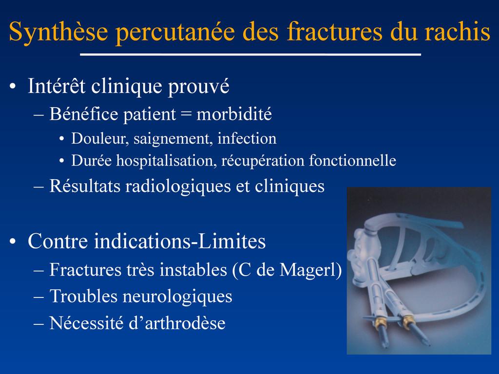 Synthèse percutanée des fractures du rachis • I...