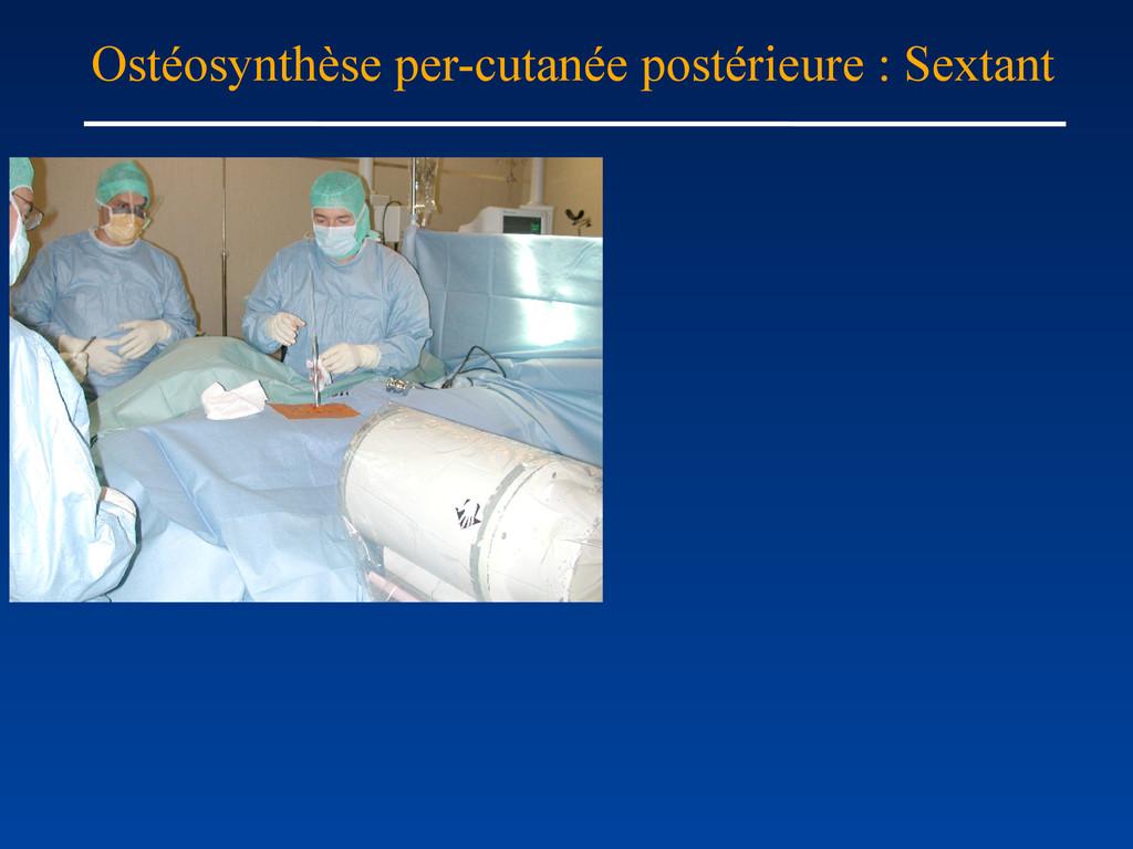 Ostéosynthèse per-cutanée postérieure : Sextant