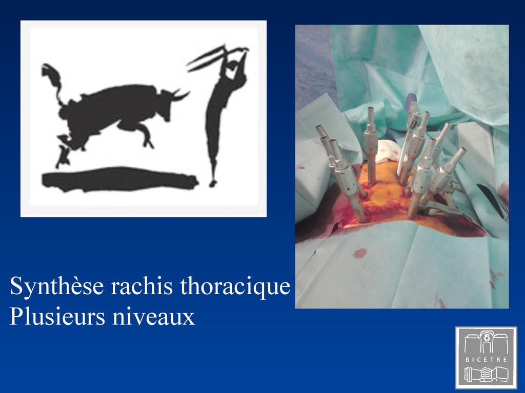 Synthèse rachis thoracique Plusieurs niveaux