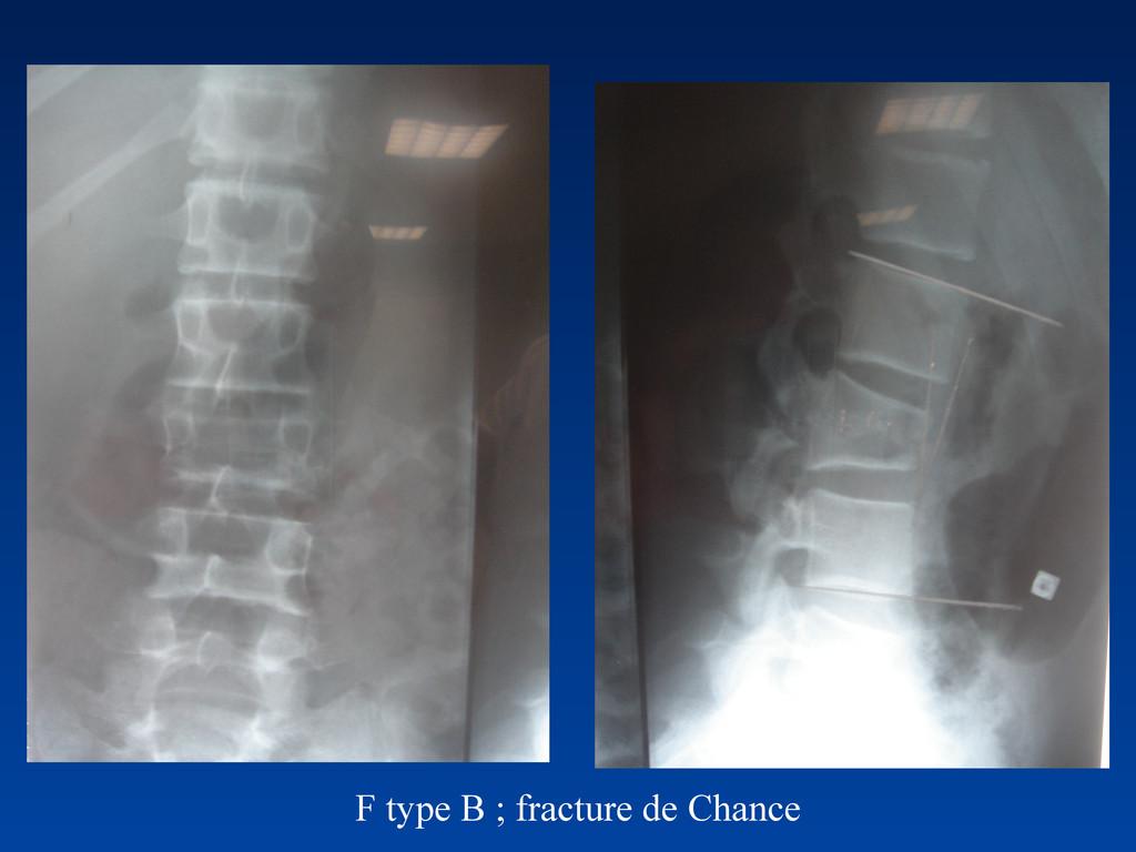 F type B ; fracture de Chance