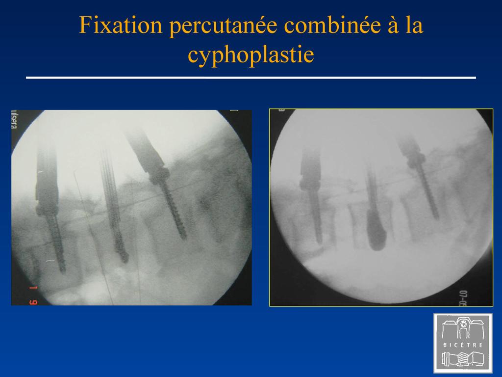 Fixation percutanée combinée à la cyphoplastie