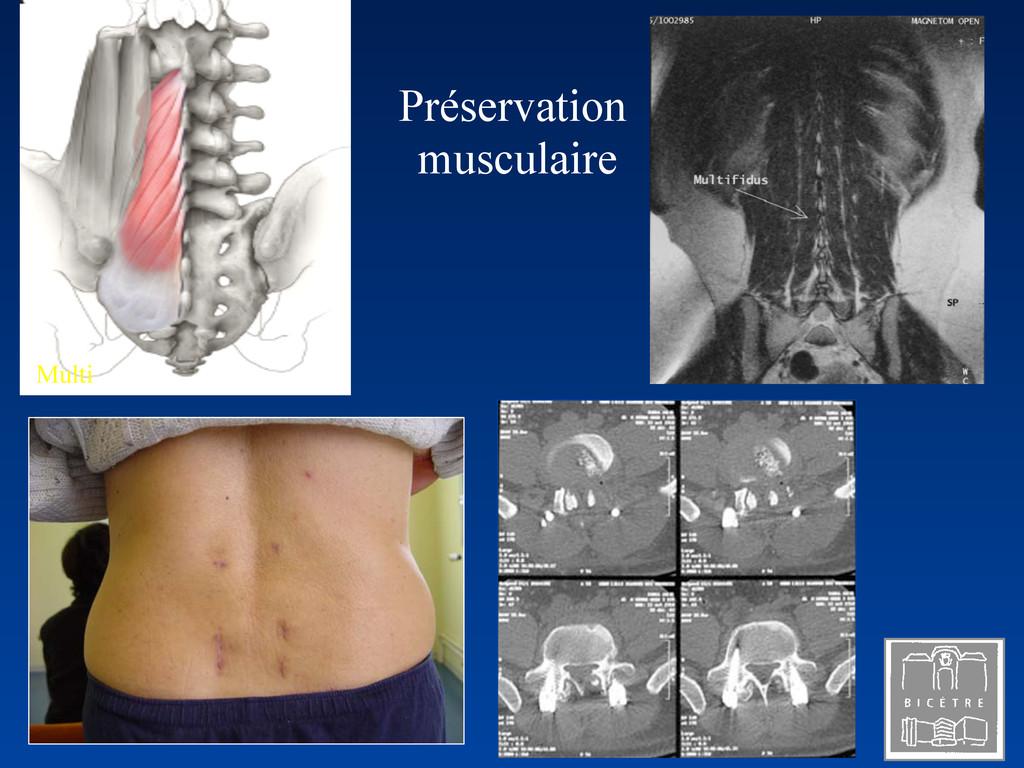 Multi Préservation musculaire