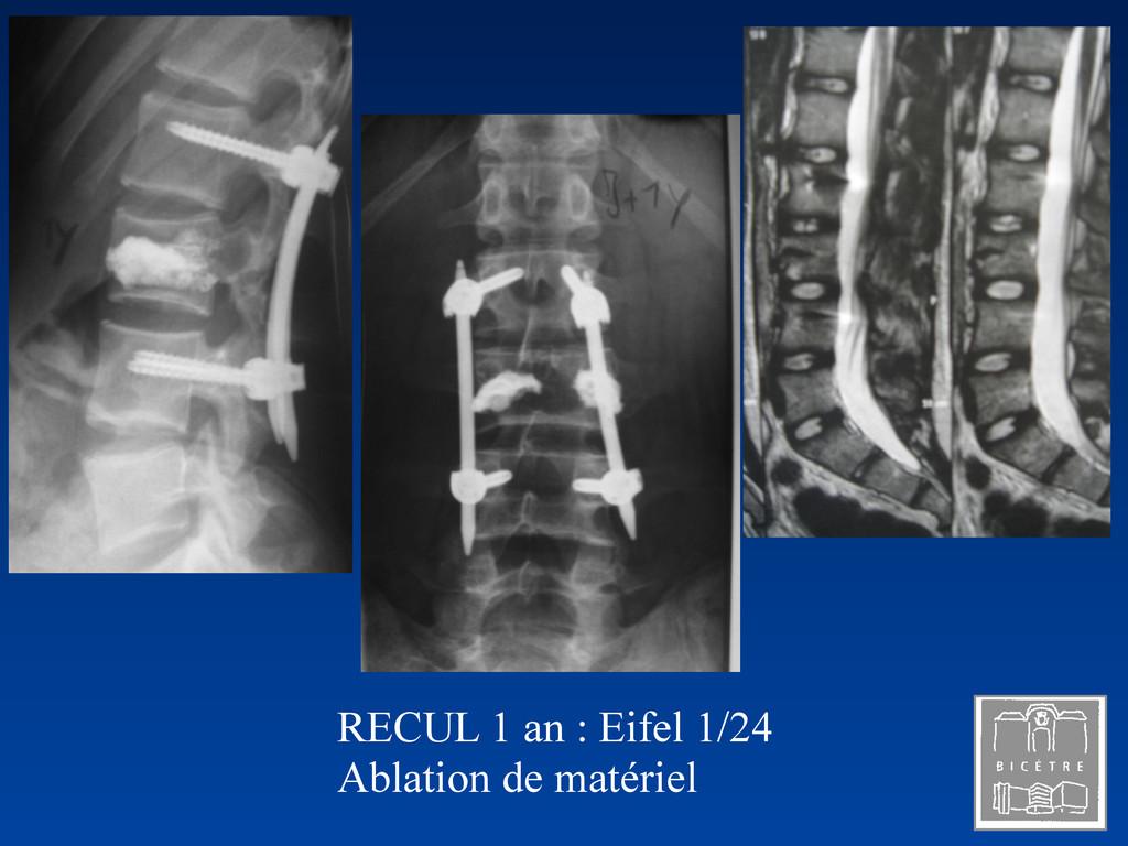 RECUL 1 an : Eifel 1/24 Ablation de matériel