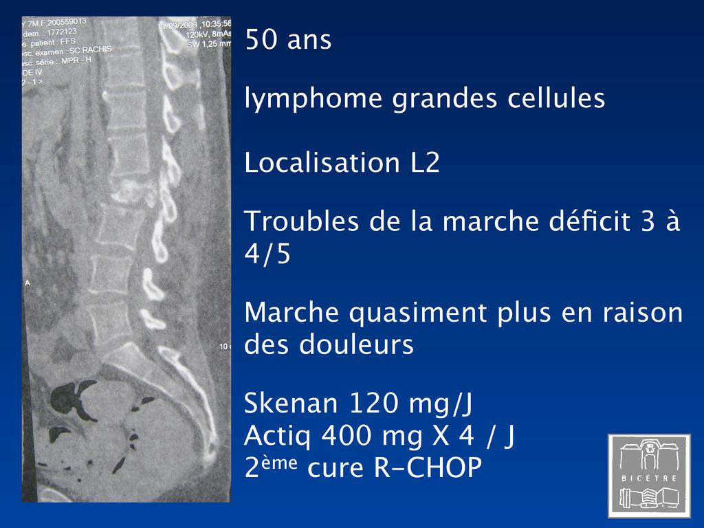 50 ans lymphome grandes cellules Localisation L...