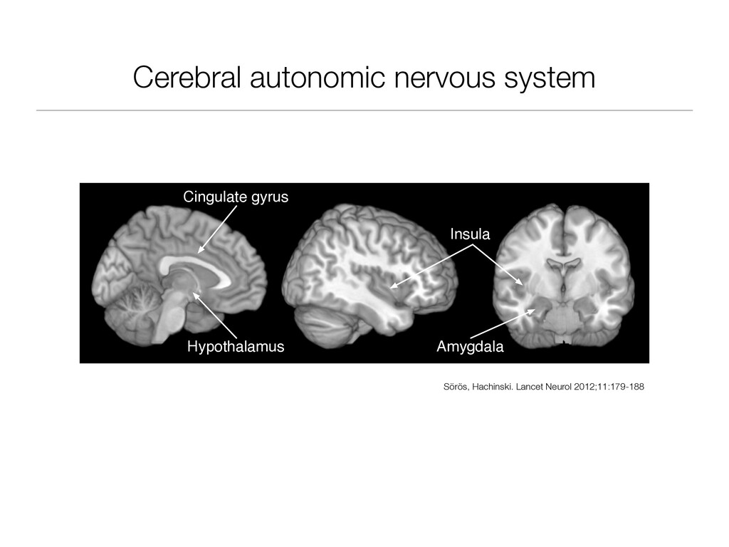 Cerebral autonomic nervous system Insula Cingul...