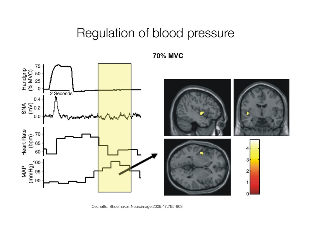 Regulation of blood pressure D.F. Cechetto, J.K...