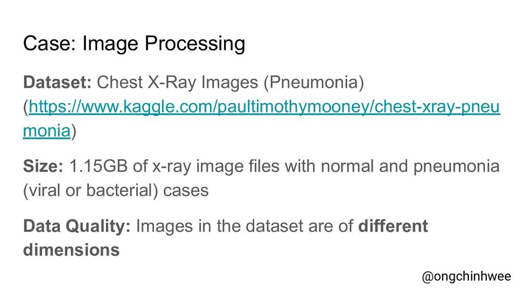 Case: Image Processing Dataset: Chest X-Ray Ima...
