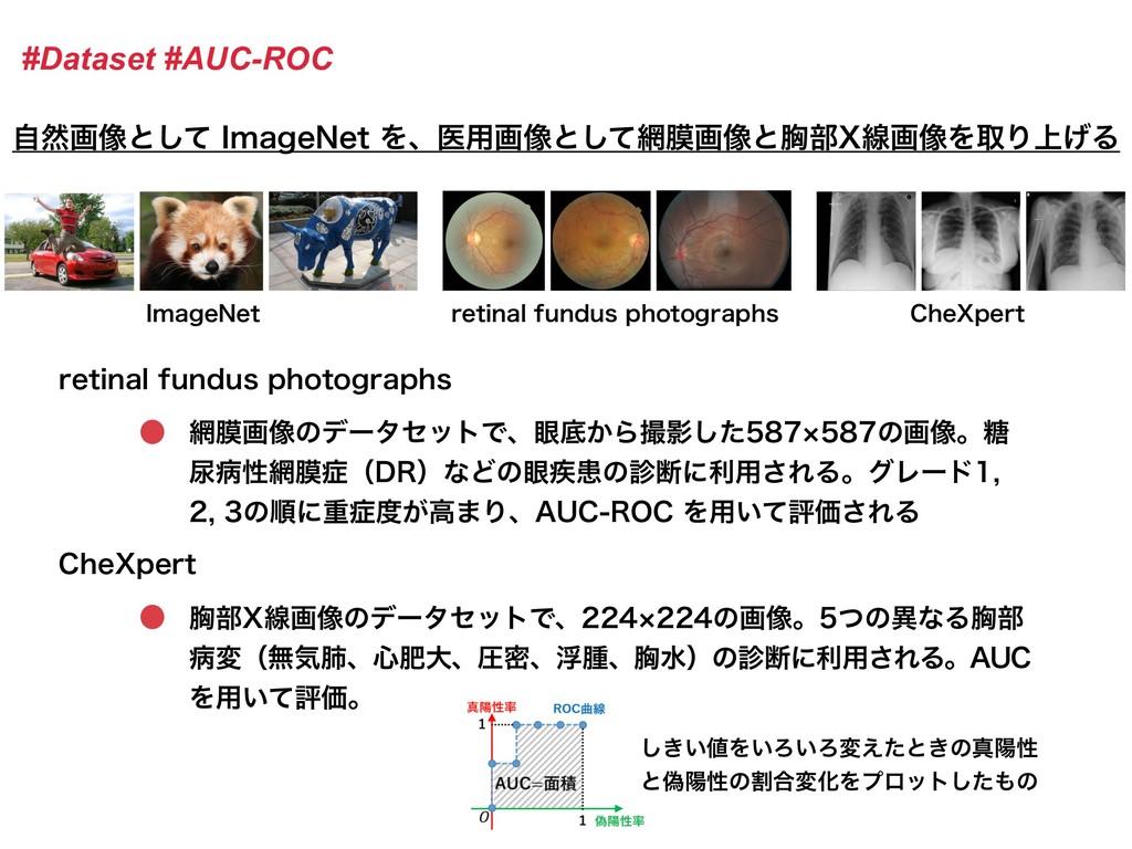 #Dataset #AUC-ROC ࣗવը૾ͱͯ͠*NBHF/FUΛɺҩ༻ը૾ͱͯ͠ບը...