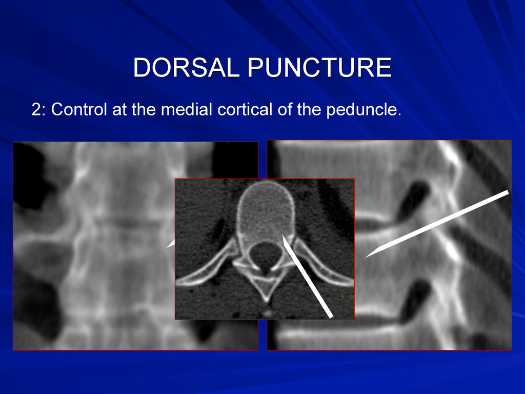 DORSAL PUNCTURE 2: Control at the medial cortic...