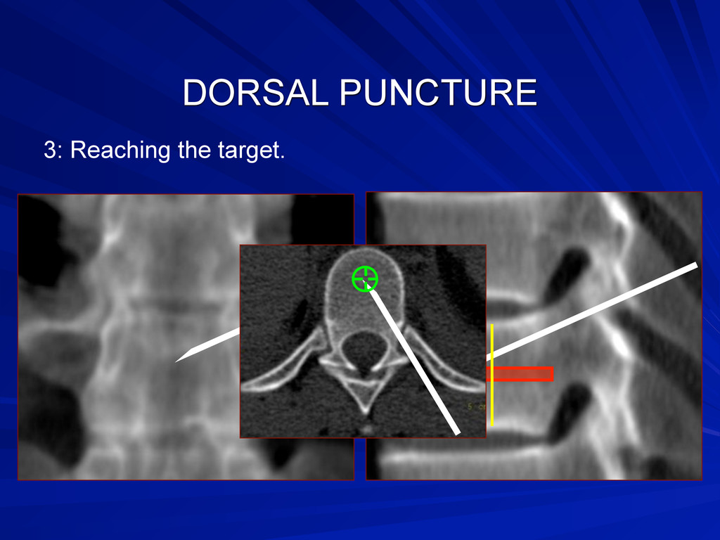 DORSAL PUNCTURE 3: Reaching the target.
