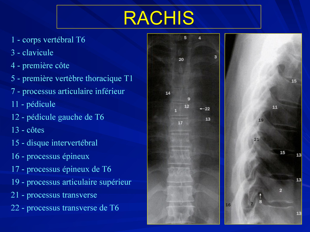 RACHIS 1 - corps vertébral T6 3 - clavicule 4 -...