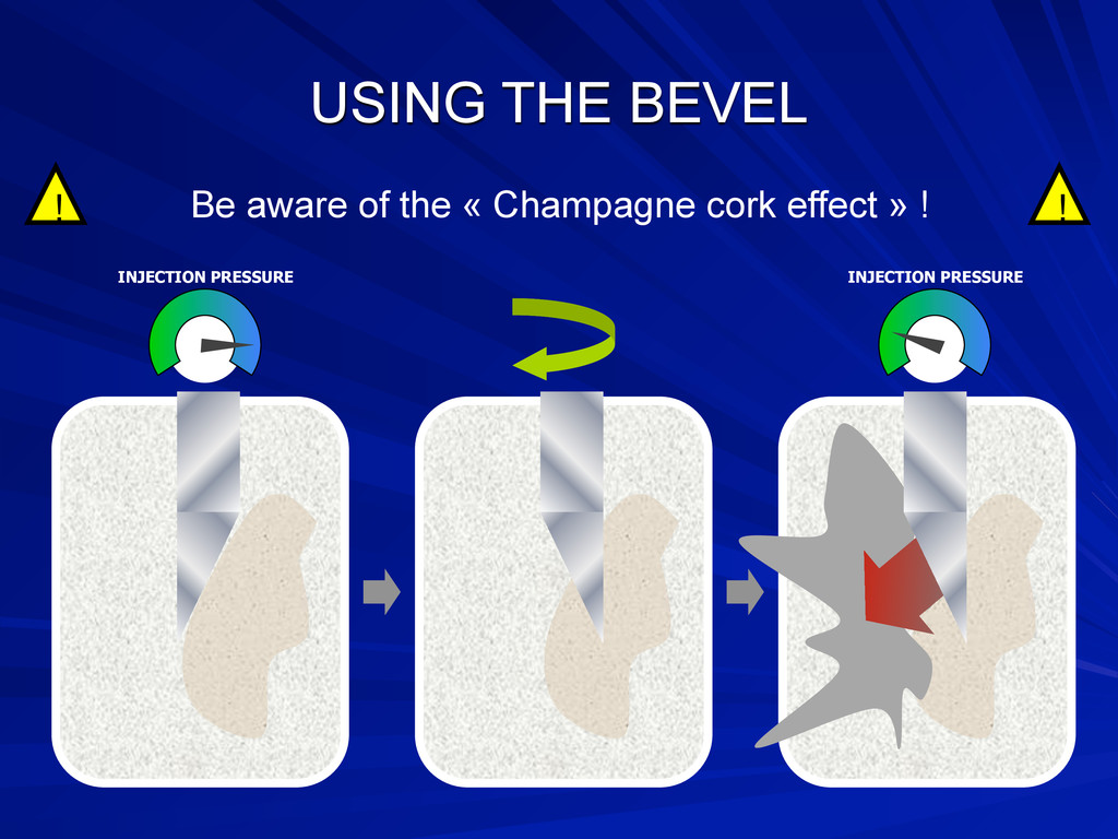 USING THE BEVEL Be aware of the « Champagne cor...